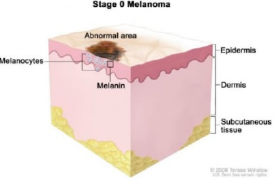Стадия 0 меланомы, ранняя