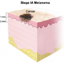 Стадия 1А меланомы