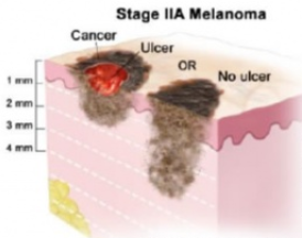 Стадия 2А меланомы