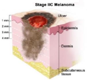 Стадия 2C меланомы